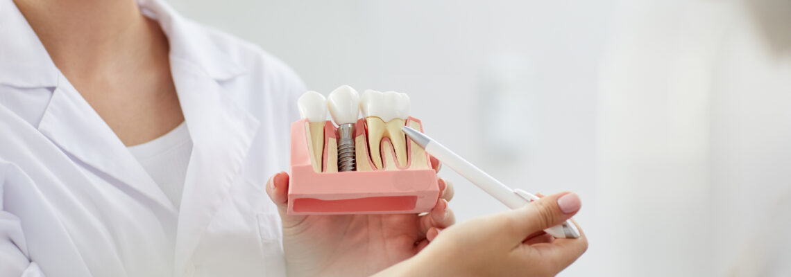 Tooth extraction for Diabetic patients! Is it safe?